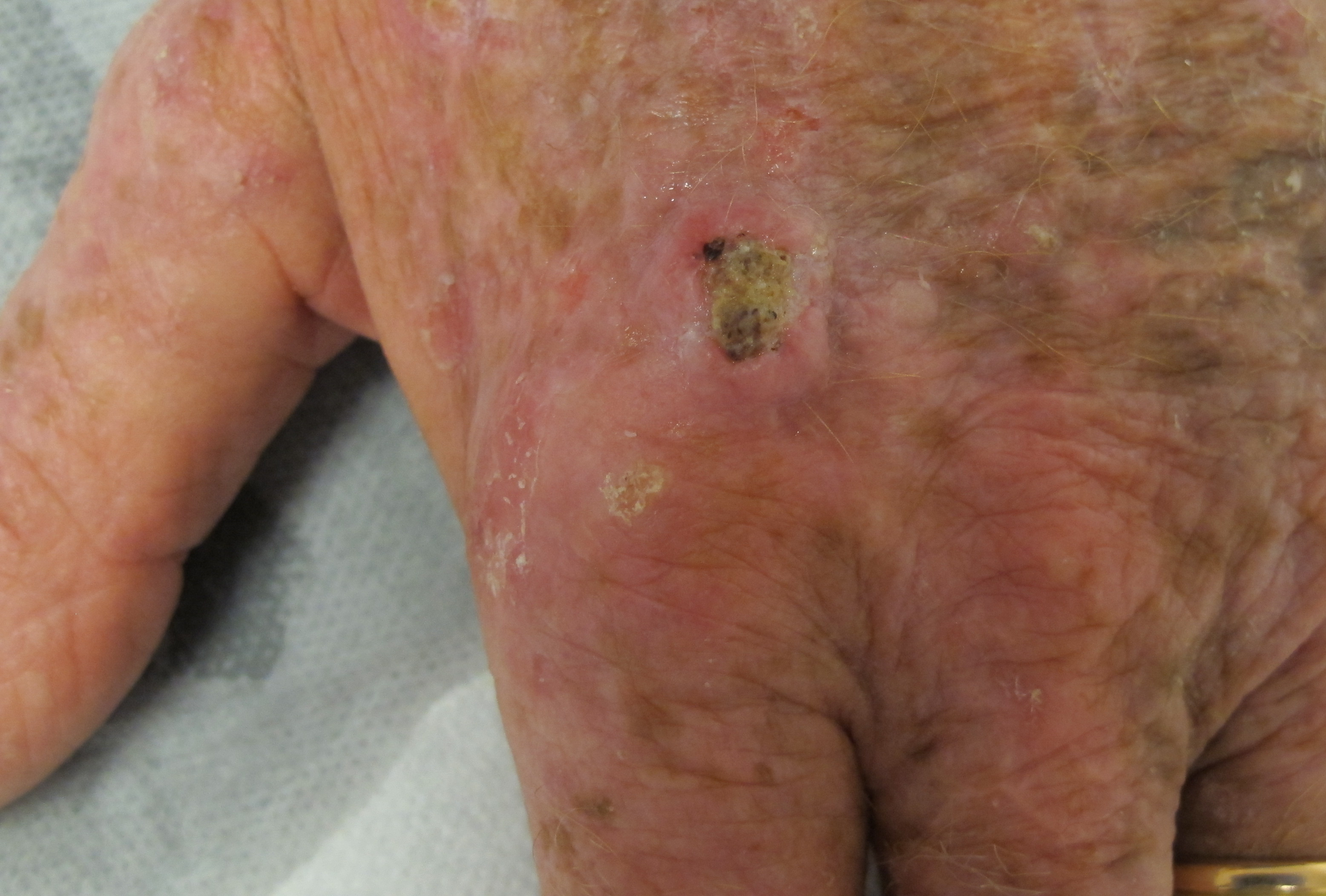 Squamous Cell Carcinoma - Integrative Cancer Care - CTCA